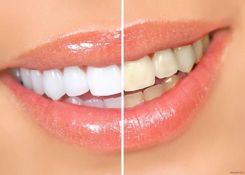 Правила безопасного для эмали отбеливания зубов