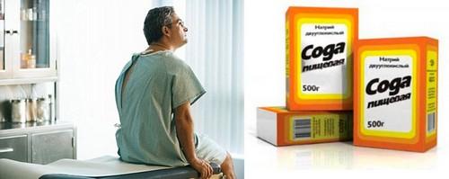 Лечение онкологии содой