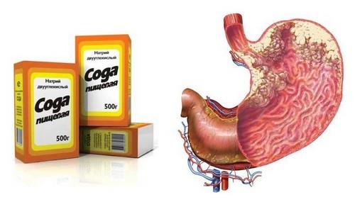 Лечение рака желудка содой